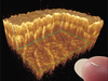 Akinetic all-semiconductor swept lasers boost OCT image quality