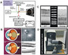 Noninvasive, In Vivo Assessment of Mouse Retinal Structure Using Optical Coherence Tomography