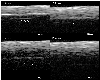 Evaluation of the marginal fit at implant–abutment interface by optical coherence tomography