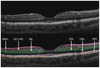 A Morphological Study of Retinal Changes in Unilateral Amblyopia Using Optical Coherence Tomography Image Segmentation