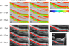Analysis of optimum conditions of depolarization imaging by polarization-sensitive optical coherence tomography in the human retina
