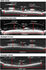 Lateral and axial measurement differences between spectral-domain optical coherence tomography systems