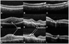 Evaluation of cystoid change phenotypes in ocular toxoplasmosis using optical coherence tomography