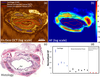 Coregistered autofluorescence-optical coherence tomography imaging of human lung sections