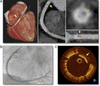 Diagnostic Accuracy of CT Angiography to Assess Coronary Stent Thrombosis as Determined by Intravascular OCT